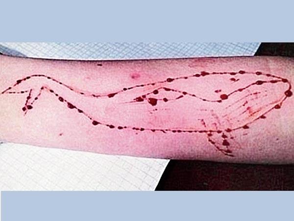 মারণ-খেলা: 'ব্লু হোয়েল' গেমে এ ভাবেই নিজের হাতে রক্ত দিয়ে আঁকতে হয় তিমির ছবি।