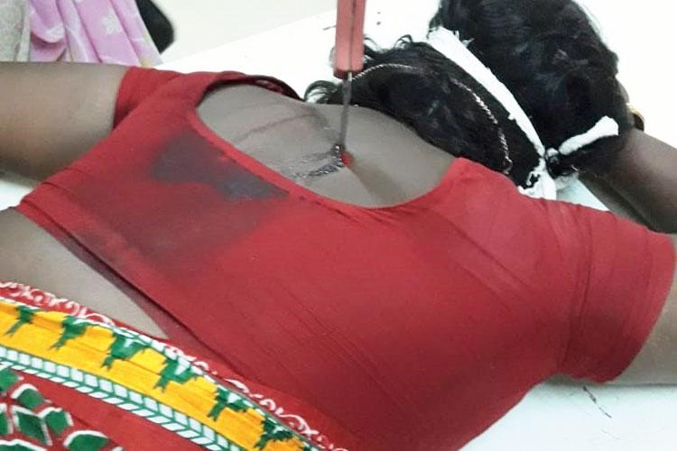 জখম: পিঠে ছুরি নিয়ে শক্তিনগর জেলা হাসপাতালে ঝুম্পা। রবিবার। নিজস্ব চিত্র