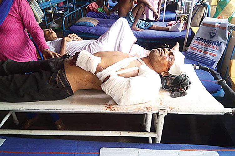 অসহায়: এনআরএসে নিখিল সেন ওরফে শিবু। রবিবার। নিজস্ব চিত্র