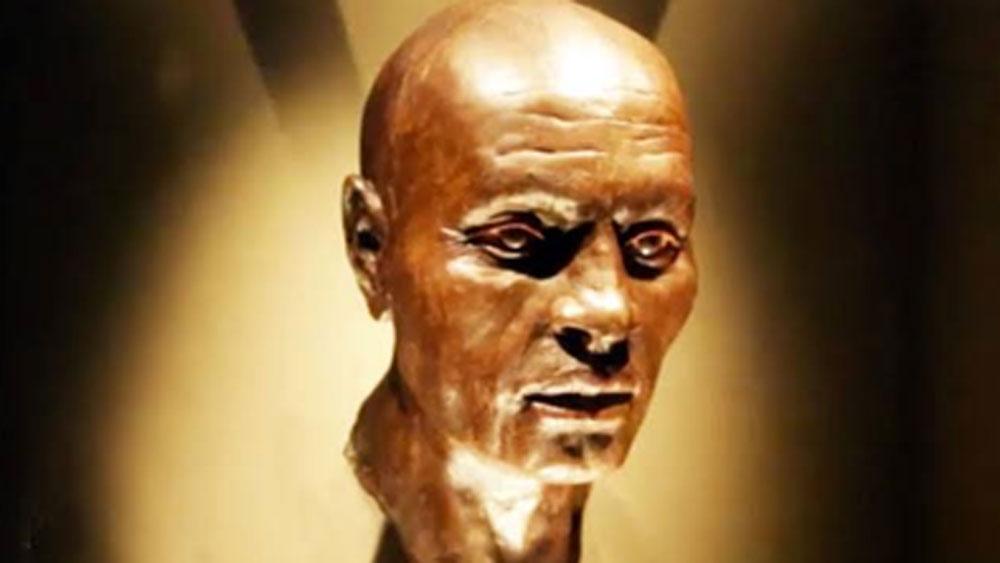 এই সংক্রমণ থেকেই সারা দেহে মারাত্মক আলার্জি হয়ে যায়। মাত্র ৫০ বছর বয়সে তিনি মারা যান।