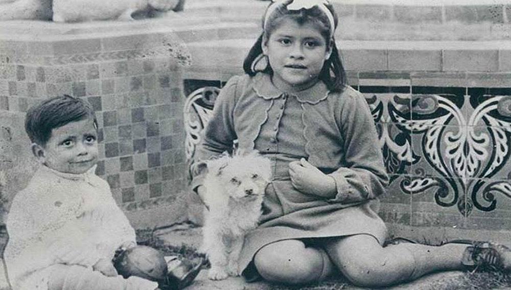 তাঁর নাম লিনা মেদিনা। পেরুর বাসিন্দা। লিনার এই পরিস্থিতির কথা নিমেষে সারা বিশ্বে ছড়িয়ে পড়েছিল। সাংবাদিকদের ঢল নেমেছিল। তাঁকে নিয়ে, তাঁর জীবনযাপন নিয়ে একাধিক তথ্যচিত্রের জন্য বড় অঙ্কের টাকার প্রস্তাবও পেয়েছিলেন তিনি।