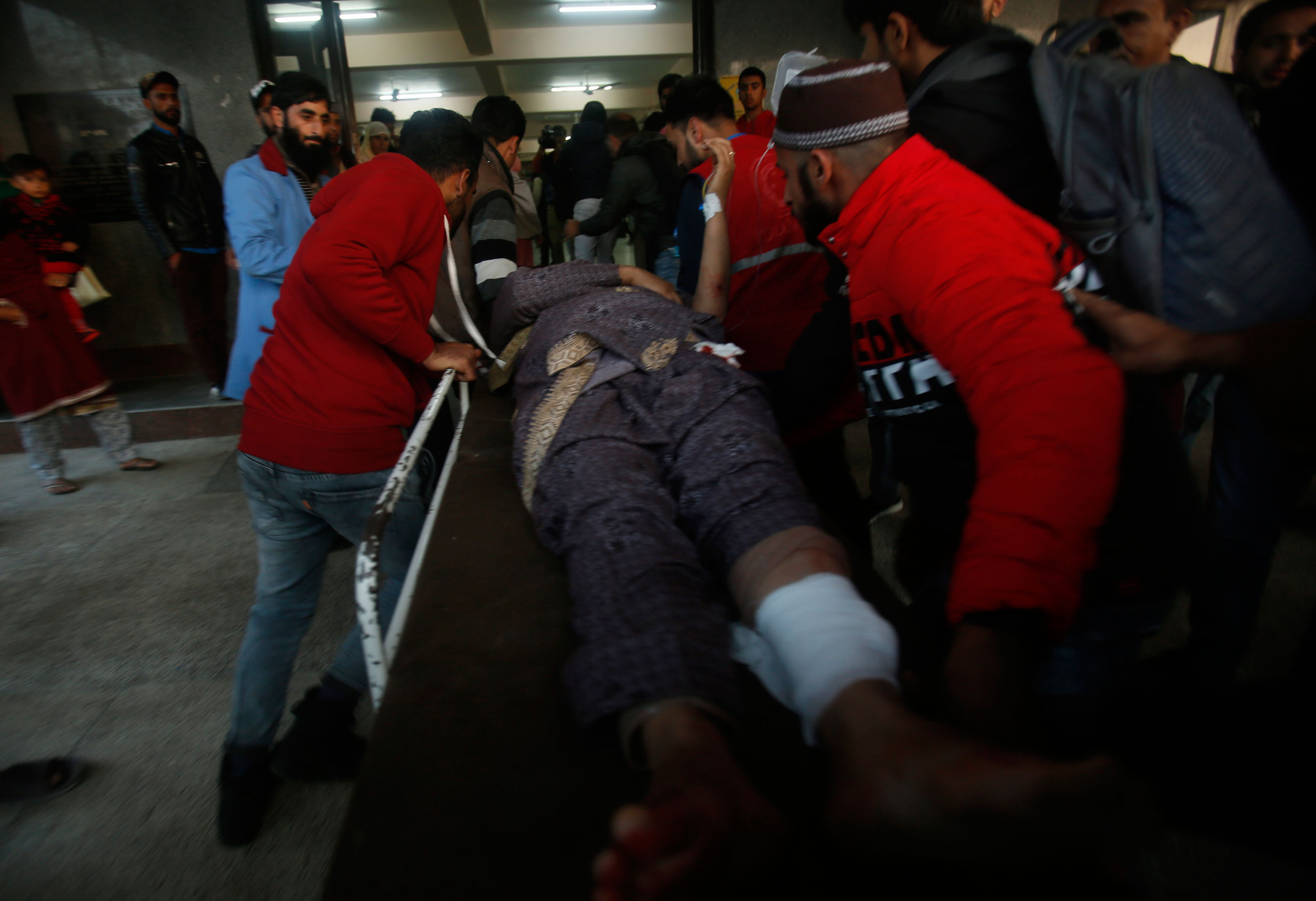 A Kashmiri woman, who was among those injured in a grenade attack by militants at a busy market in northern Sopore town is brought for treatment at a hospital in Srinagar, on Monday.
