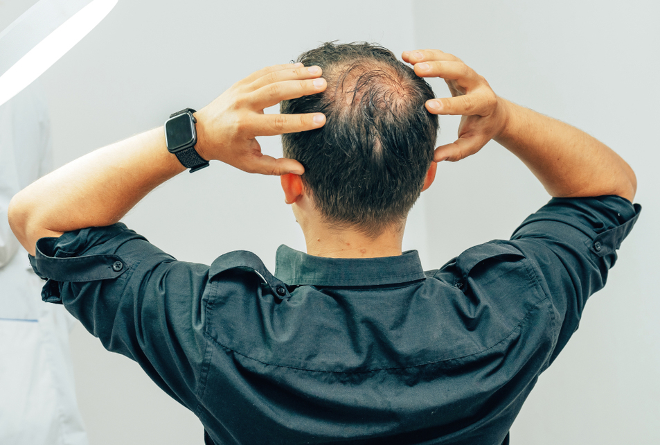 Since a theory says that rapid hair loss is caused by air pollutants, wash your hair with paraben-free shampoo every day after you return from work.