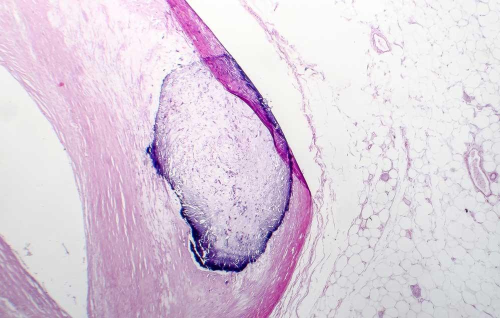 Artery calcificatio, seen through a microscope.