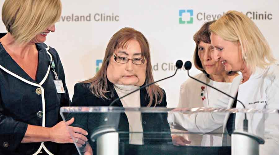 Connie Culp at the Cleveland Clinic in 2009