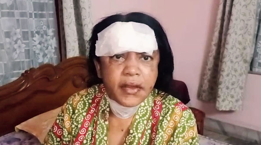 Kanta Karmakar who was injured by the robbers.
