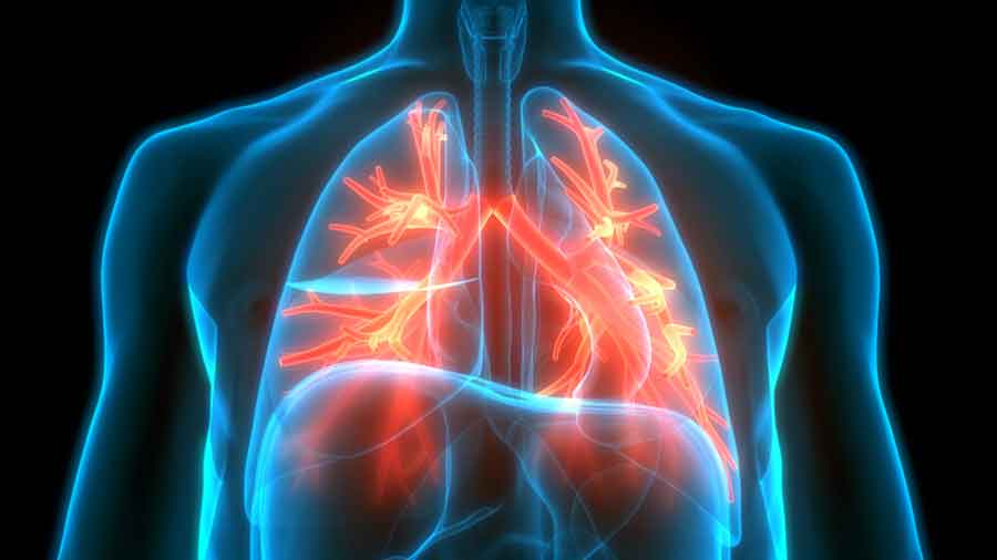 If someone whose lungs are already compromised gets infected with the coronavirus, that person can develop serious complications