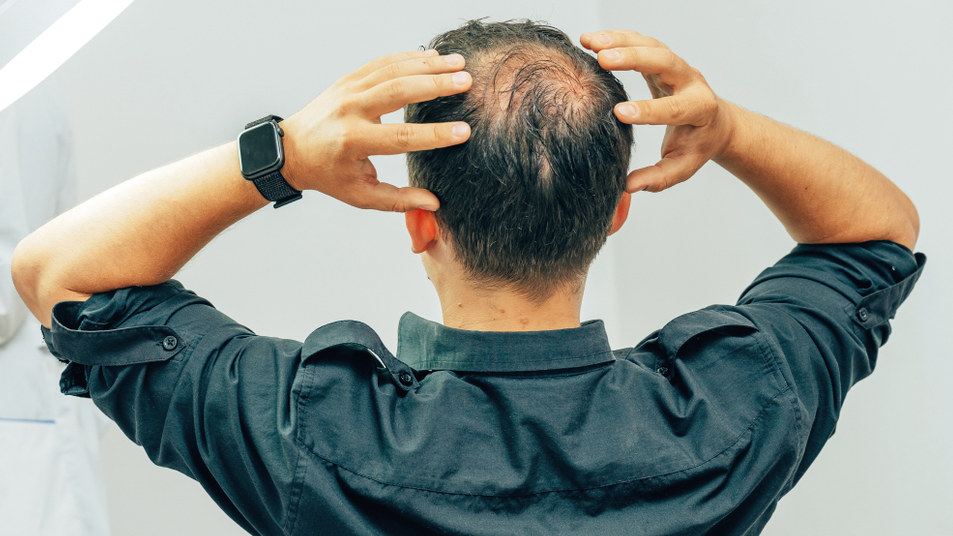 Men tend to lose hair on the crown and sides of the forehead, while women tend to lose all over the scalp.