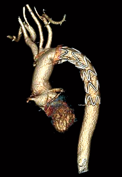 The trunk-shaped graft implanted inside the chest  of the man from Manipur.