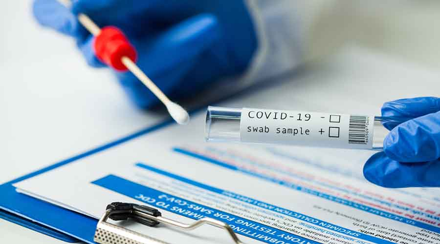 As per data with the state health department, at least 537 swab samples from various medical colleges in Jharkhand have been sent to ILS Bhubaneswar for genome sequencing from March to April and 363 of them have been processed.