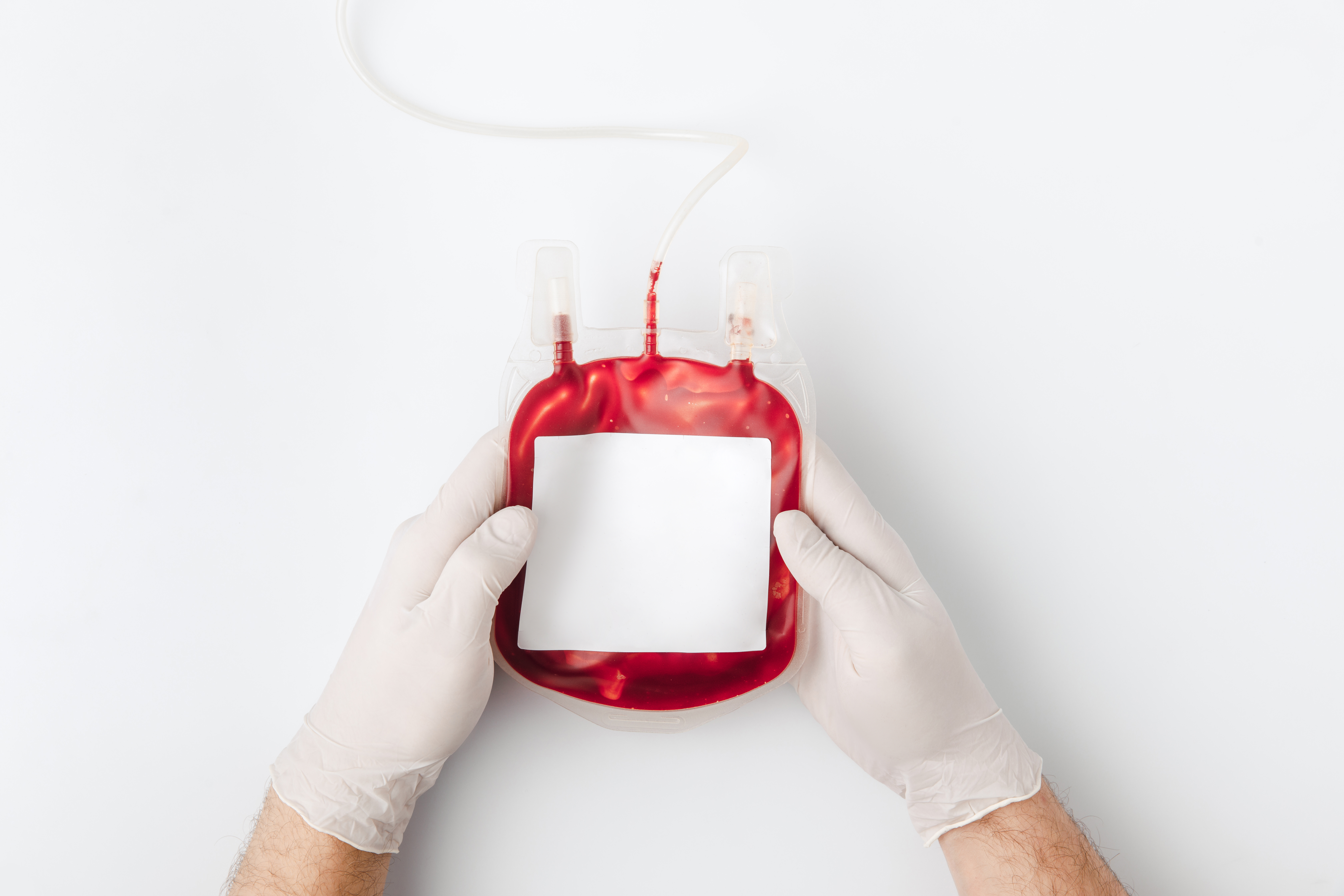 Usually, 180-200ml of blood constitutes a unit. Those with thalassaemia require 10-15ml of blood for every kilogram of a person's body weight, a doctor said