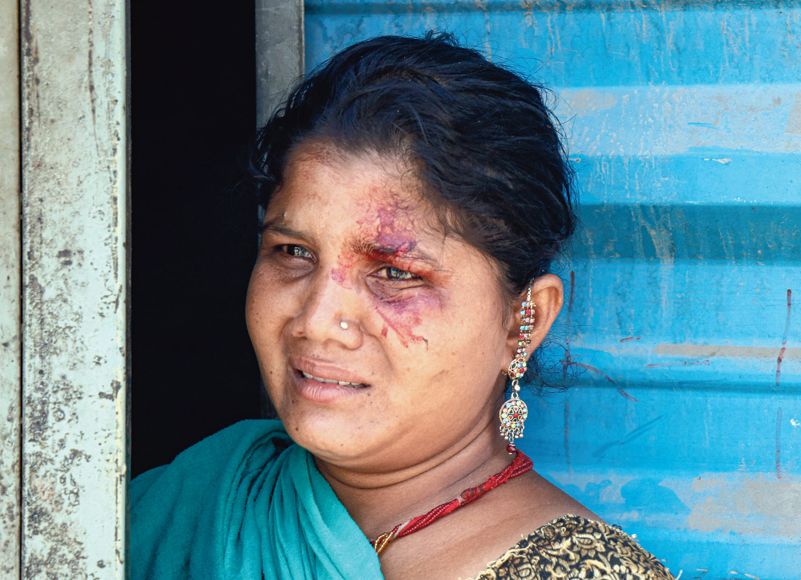 """The wife of a migrant worker injured in a protest in Ahmedabad on Monday. Police fired tear gas and rained lathis to disperse a crowd of migrant workers who had gathered on an Ahmedabad road to demand to be allowed to return home. Around 100 were detained, police said.  Joint commissioner of police Amit Vishwakarma said the migrant workers from different states had been asking the local authorities for many days to send them back home. """"Around 400 to 500 migrant workers  live at the labour colony and work at a nearby construction site. They are demanding since long that they be sent back. When  some of them gathered on the road on  Monday over the same demand, the police asked them to go back and have patience,"""" he said.  """"However, they suddenly got angry and engaged in stone pelting. It was a sudden outburst... not directed at police."""""""