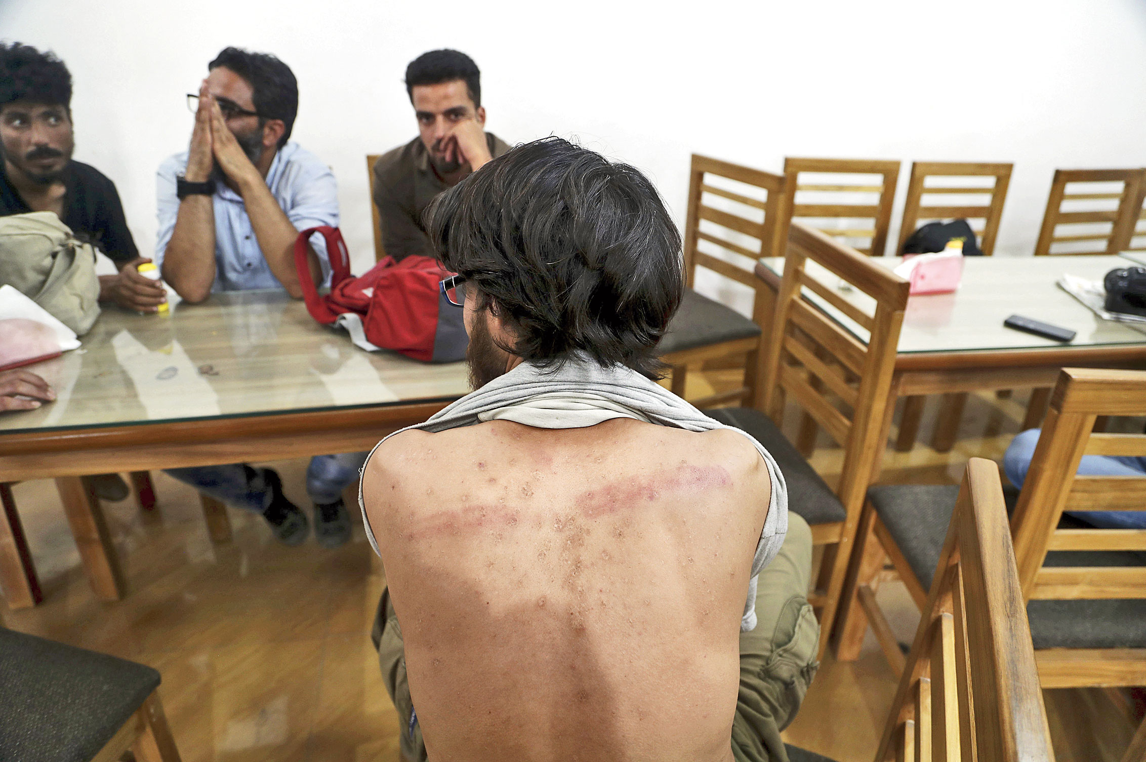 Journalist Shahid Khan displays marks on his back caused by alleged police beating in Srinagar on Saturday.
