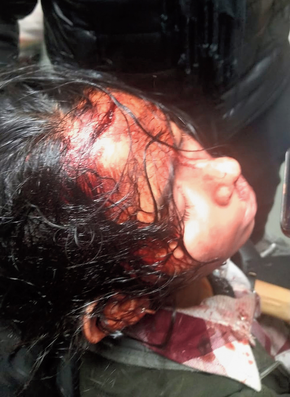 Aishe Ghosh, the JNUSU president, has a deep gash on her head after she was hit with an iron rod by masked goons near Sabarmati canteen around 7pm. She is being treated at AIIMS.