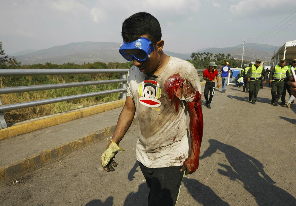 A bloodied Venezuelan youth walks on the Simon Bolivar International Bridge after getting injured during clashes with Venezuelan National Guardsmen who are blocking the entry of US-supplied humanitarian aid in La Parada, Colombia, on February 25, on the border with Venezuela
