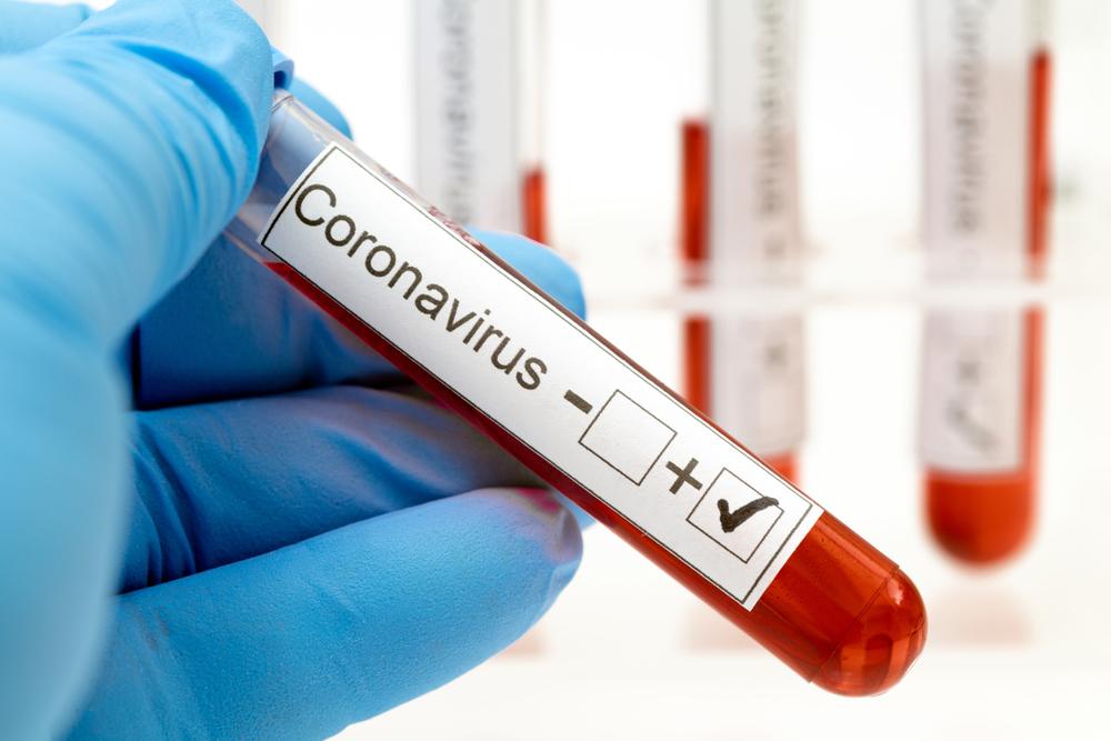 Bangladesh has reported 33 coronavirus cases so far