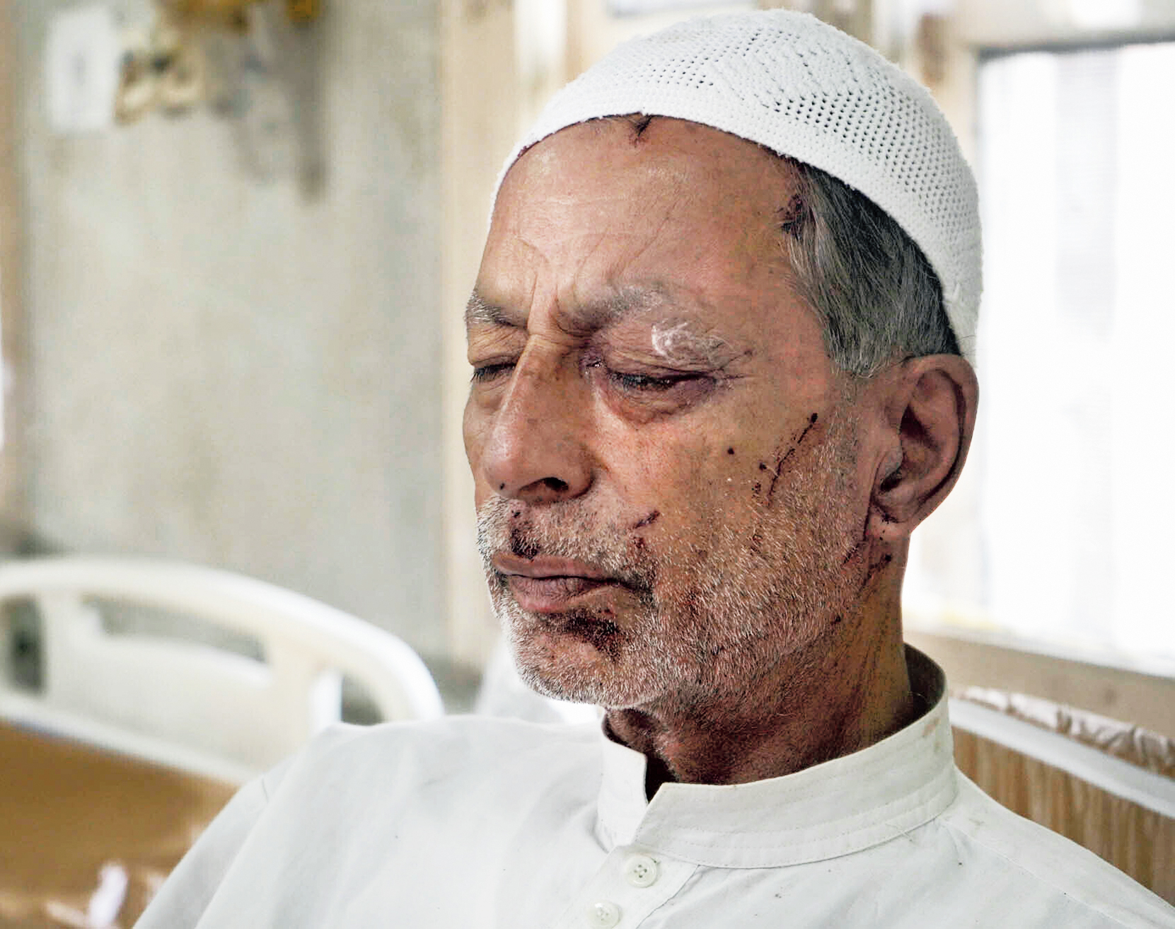 Admitted to a hospital in Srinagar, Mohammed Siddiqu, 70, said on Sunday that his left eye was badly damaged when a security official fired a pellet gun at him while he was returning home from a mosque. Siddiqu lifted his shirt and showed his pellet-riddled back.