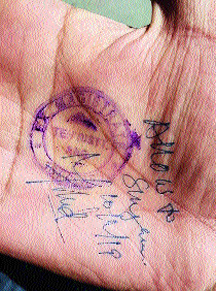 The image showing the stamp on the palm