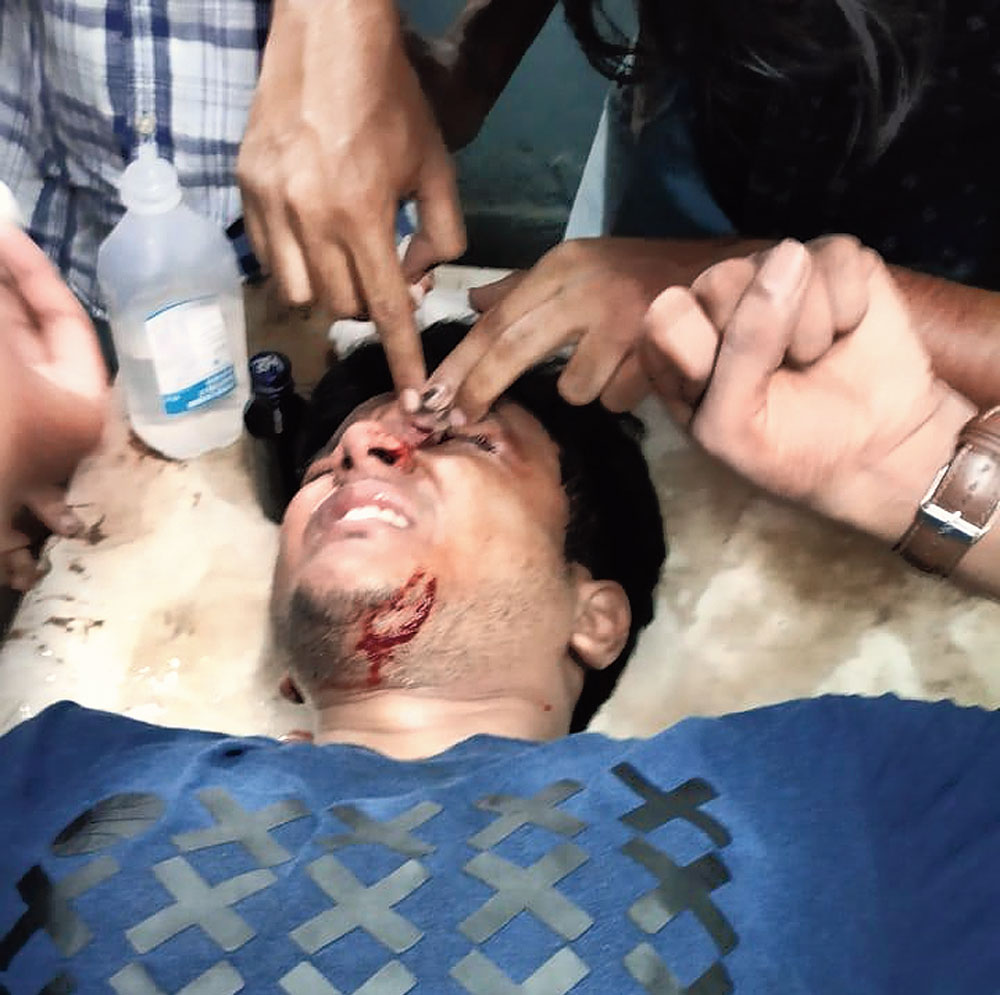 Mayank Agarwal, the fourth-year medical student, who was injured in the attack at Burdwan Medical College and Hospital on Wednesday