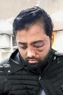 Earlier, another student, Mohd Minhajuddin, had moved a plea seeking a probe and demanding compensation for injuries he suffered. Minhajuddin, according to his plea, lost vision in one eye.