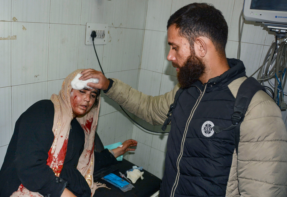 A woman who was injured in the grenade attack in Srinagar on Monday