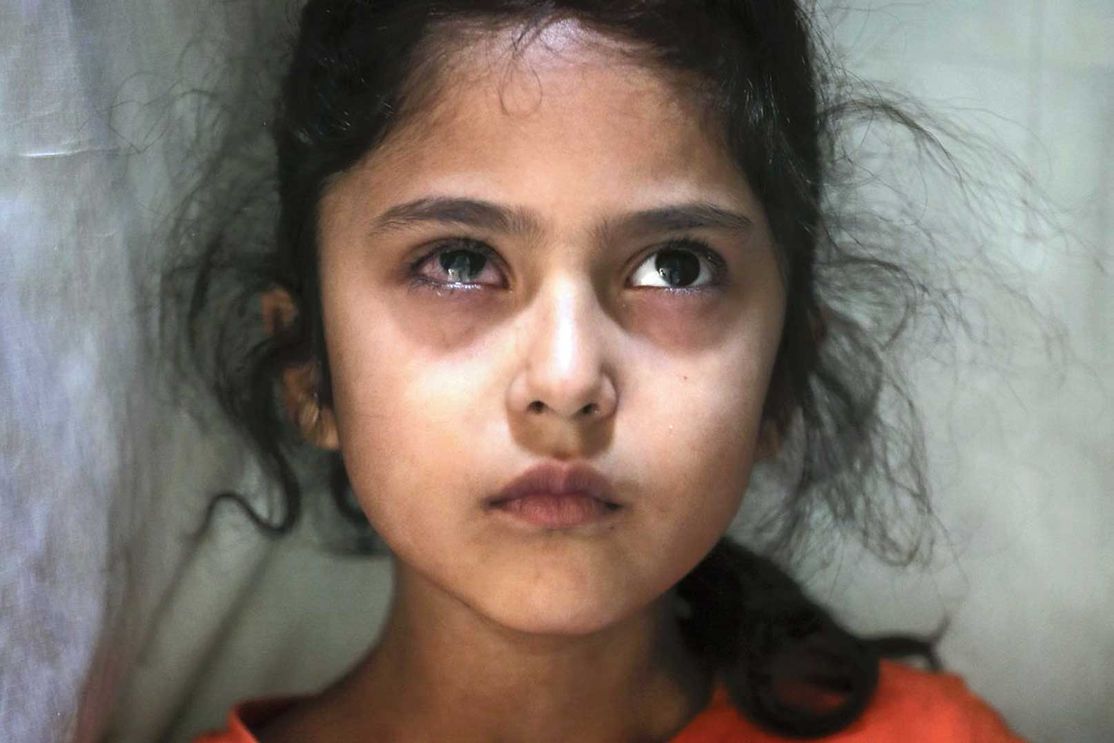 Associated Press photographer Mukhtar Khan's photograph of Muneefa. This was one of the 20 pictures for which three Associated Press photographers won the 2020 Pulitzer Prize for Feature Photography.