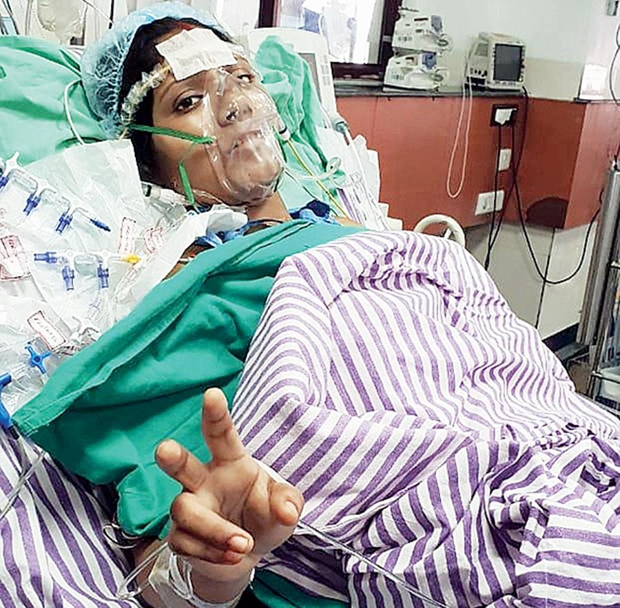 Rakhi Mondal after operation at the Calcutta hospital