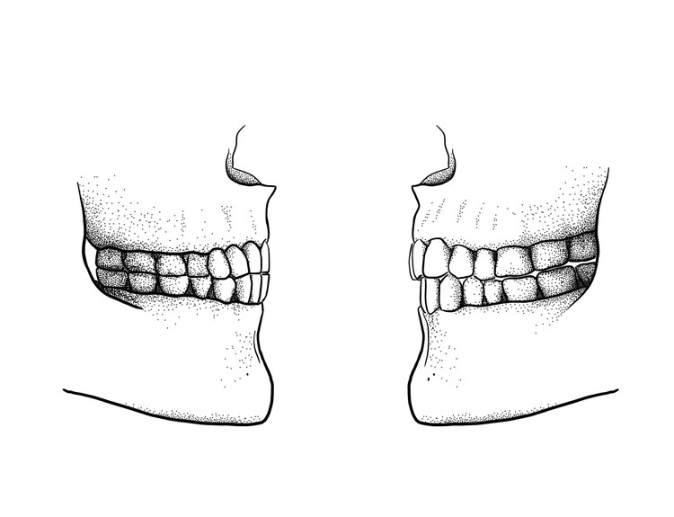 The difference between a paleolithic edge-to-edge bite (left) and a modern overbite