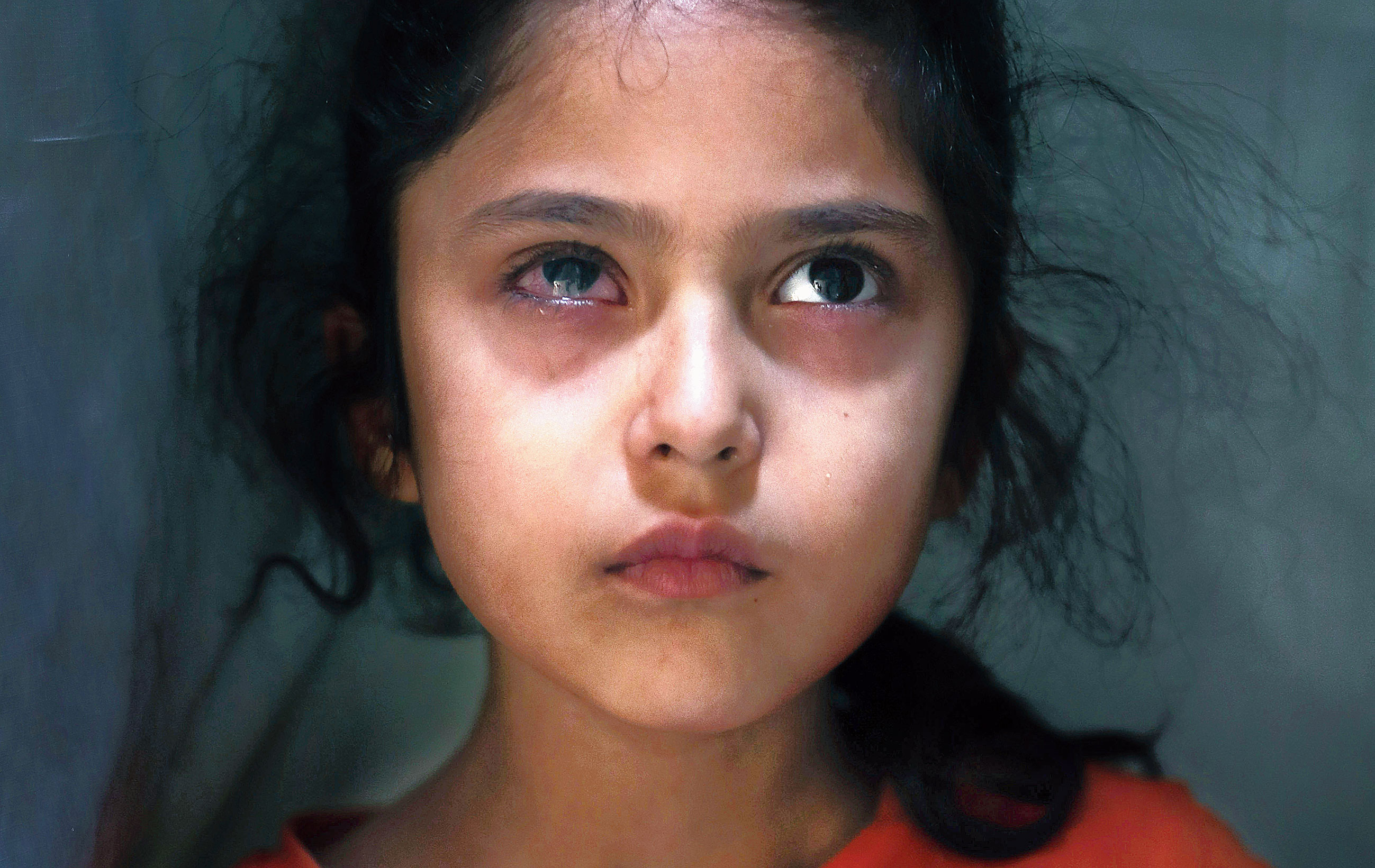 This photograph, taken on September 17, shows six-year-old Muneefa Nazir standing outside her home in Srinagar. AP had reported, quoting her uncle Farooq Ahmed Wani, that Muneefa had been hit in the right eye by a marble shot from a sling, allegedly by a paramilitary soldier, on August 12.