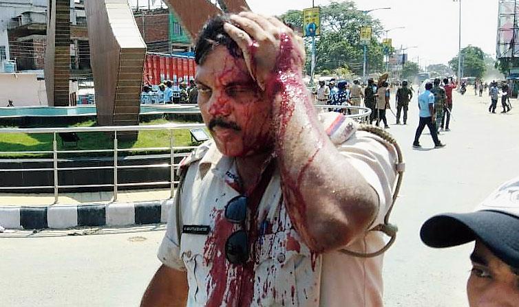 Injured police sub-inspector Bibhu Bhattacharya in Gangarampur.