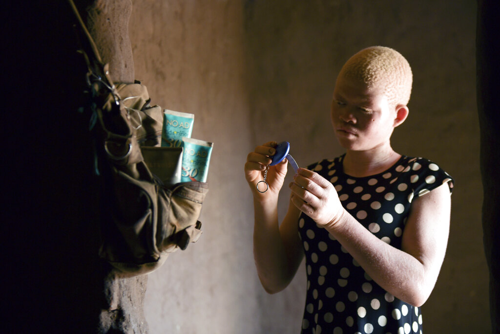 Catherine Amidu shows her protective alarm inside her home in Machinga, Malawi. People with albinism in several African countries live in fear of being abducted and killed in the mistaken belief that their body parts carry special powers and can be sold for thousands of dollars. 17-year-old Amidu survived an attempt on her life in 2017.