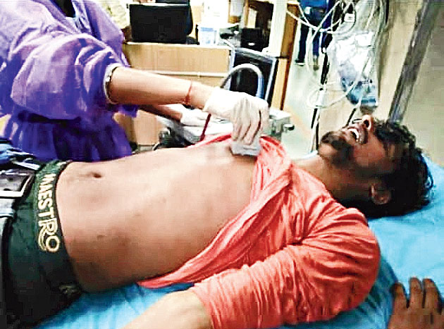 A blind student, Shashibhushan Pandey, knocked unconscious by a policeman. He was carrying a blind people's white walking stick.