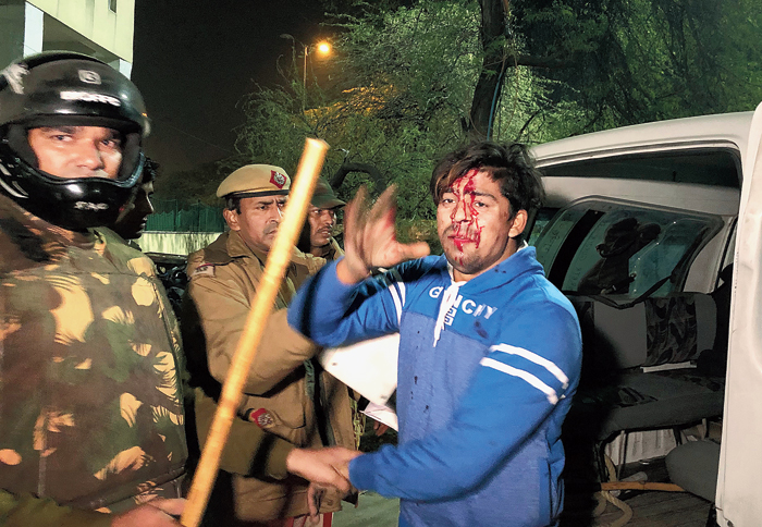 Police detain an injured student outside Jamia Millia Islamia university on Sunday night
