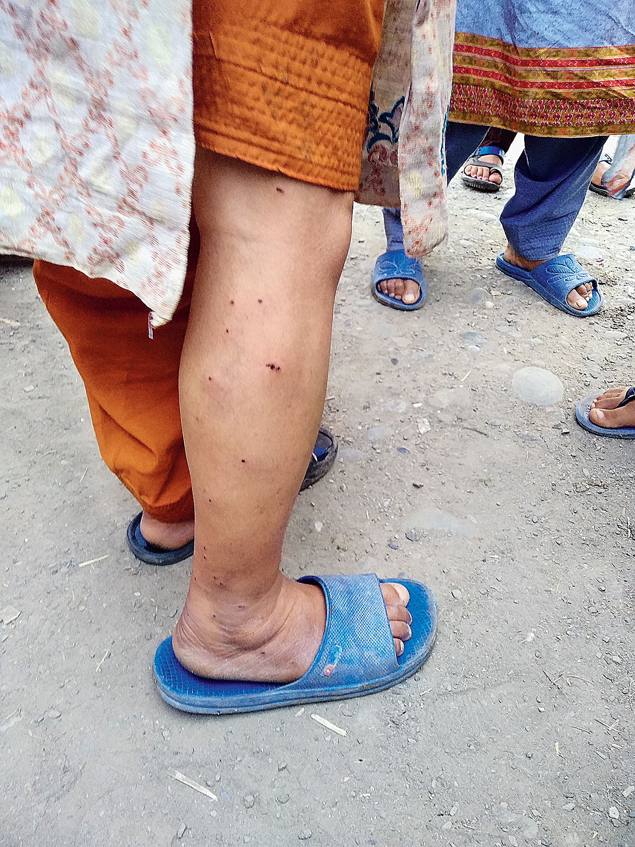 A woman in Shanpora shows her pellet wounds